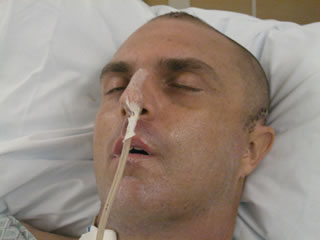 Mike Vincent in a coma